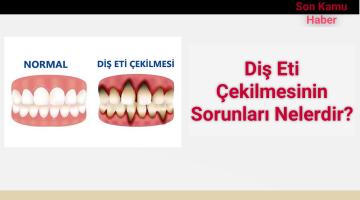 Diş Eti Çekilmesinin Sorunları Nelerdir?